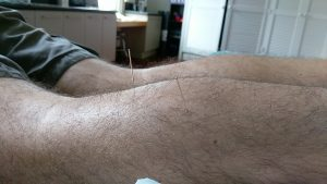 Needle therapy. Dry needling the calves.