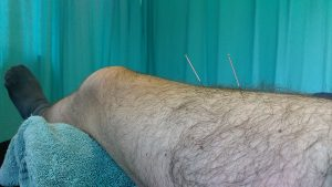 Needle therapy. Dry needling the quads.
